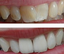 Dental Before and After Photos, Treamtent in Budapest, Hungary